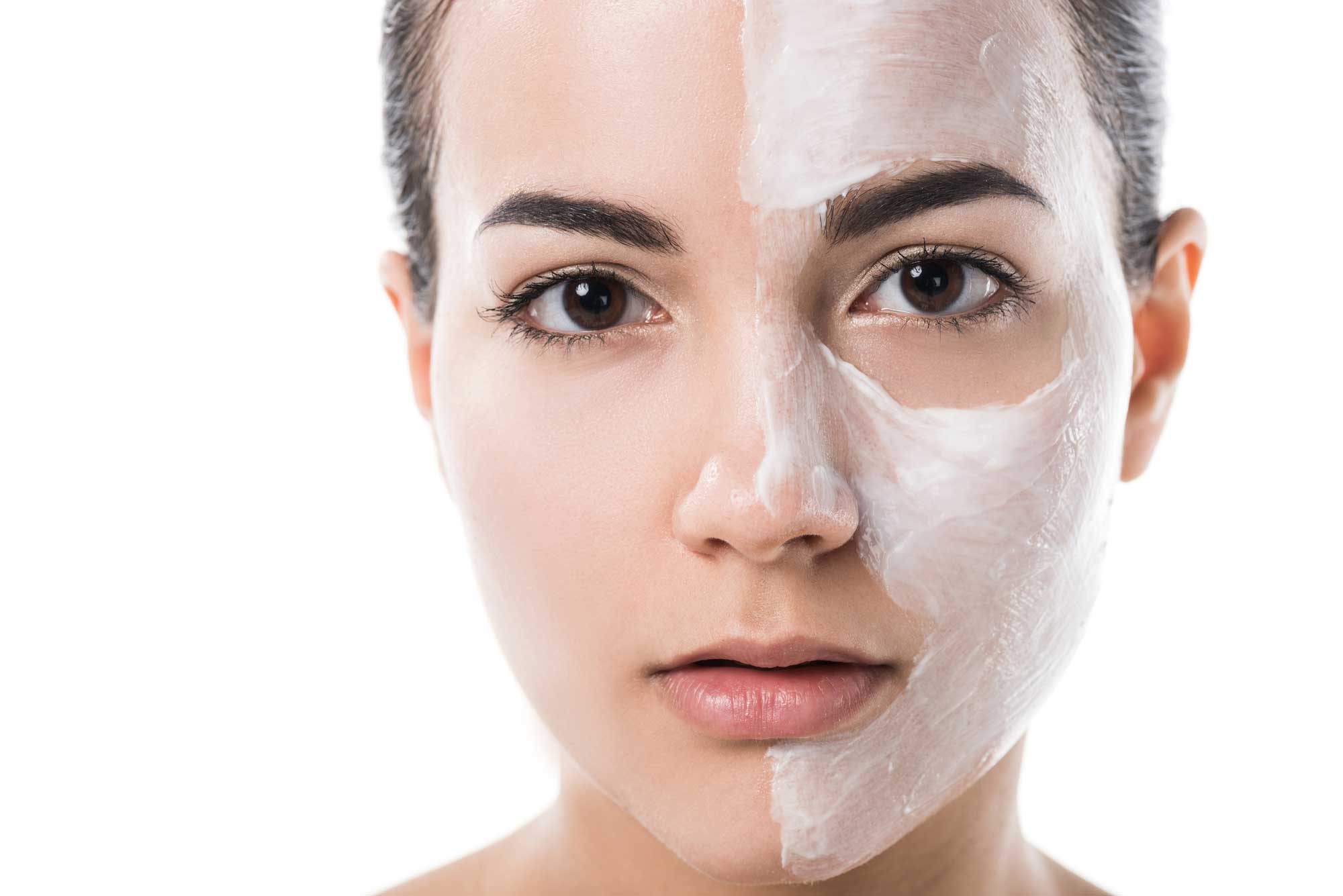 CBD Cream For Acne