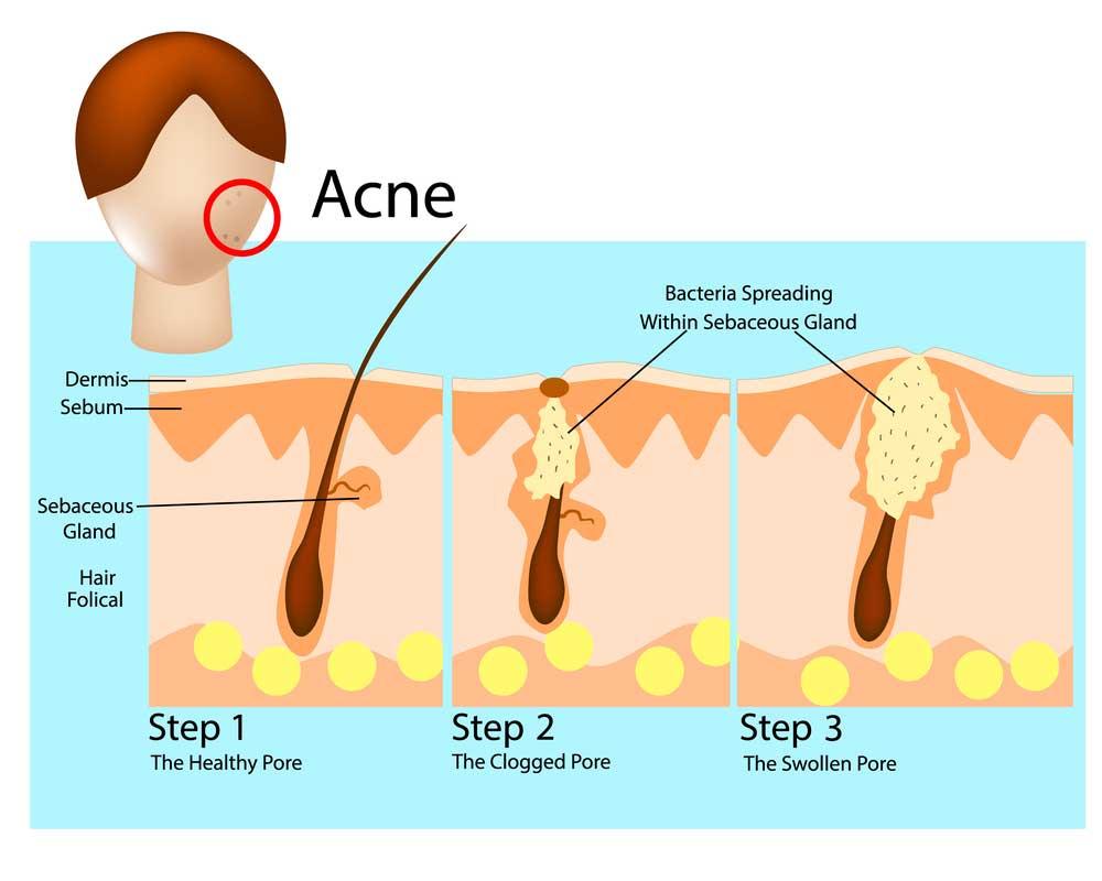 CBD and acne